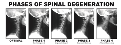 Кога спира болката от дископатия?